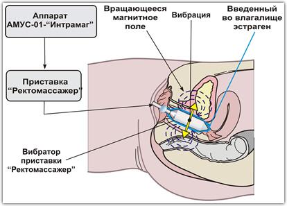 massage karlstad dildo vibrator